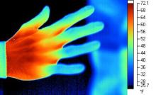 Peripheral Vasoconstriction in fingers demonstrated using Infrared