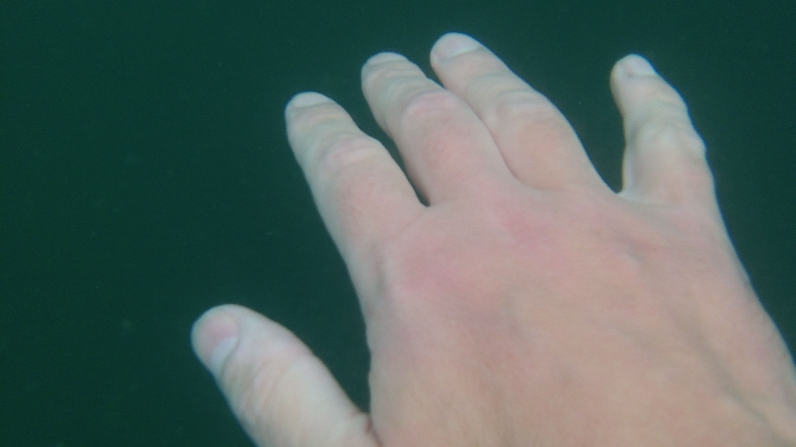 Understanding The Claw As A Hypothermia Indicator Loneswimmer
