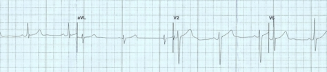 A portion of my Jan 2014 ECG!